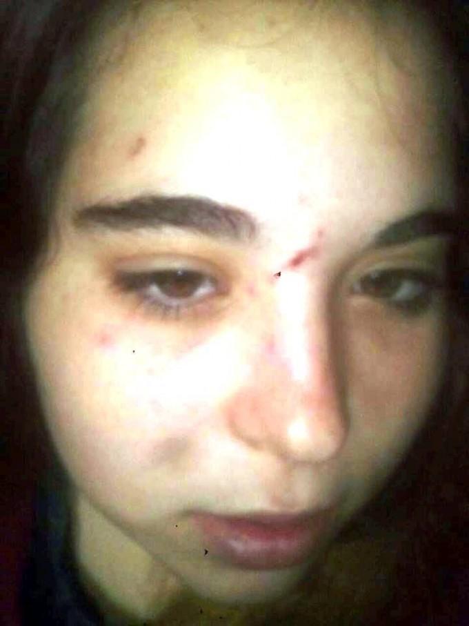 Una joven denunció violencia de género y fijaron restricción perimetral