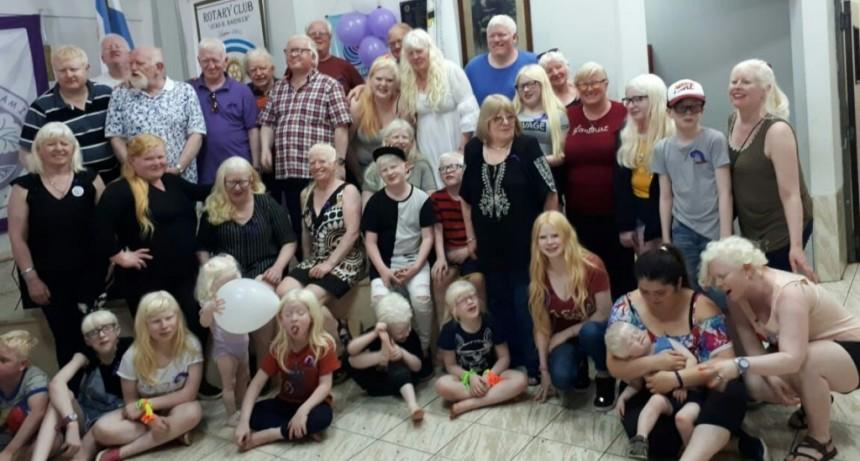 Impulsan Ley Nacional de Albinismo