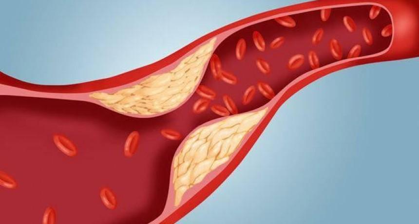 Nutrición: Estudio afirma que Argentina es uno de los países que más bajó el colesterol malo